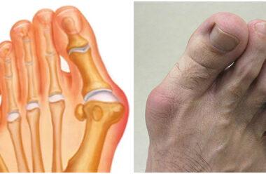 Кісточка на великому пальці: причини виникнення та що з нею робити